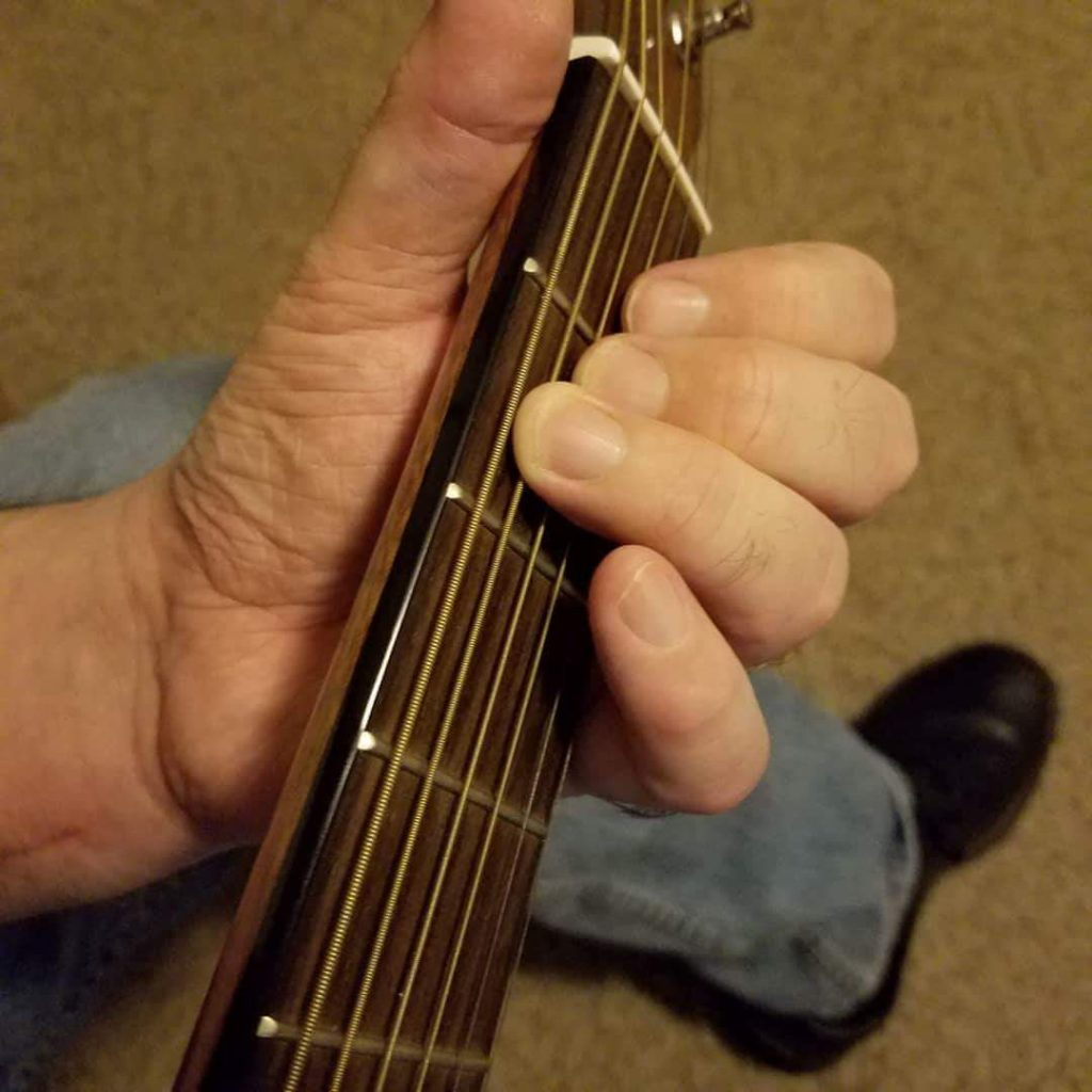 post-accident-guitar-playing